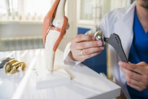 10 Million People with Hip, Knee and Shoulder Replacements